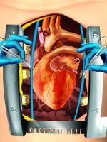 Open Heart Surgery Simulator APK