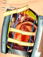 Open Heart Surgery Simulator APK